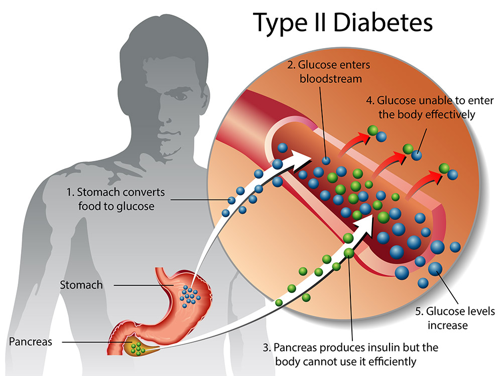 diabetes self management type2