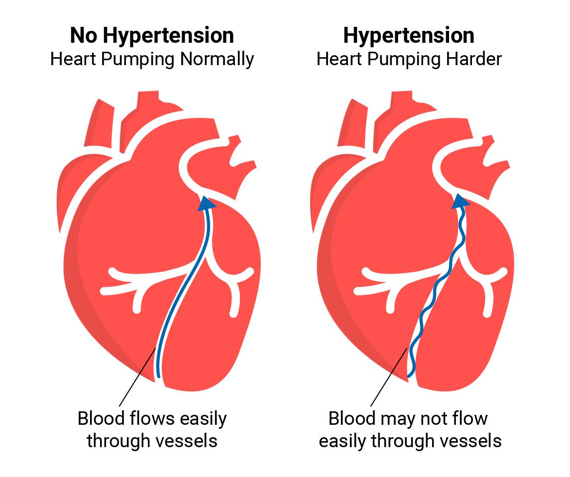Hypertension Pathophysiology