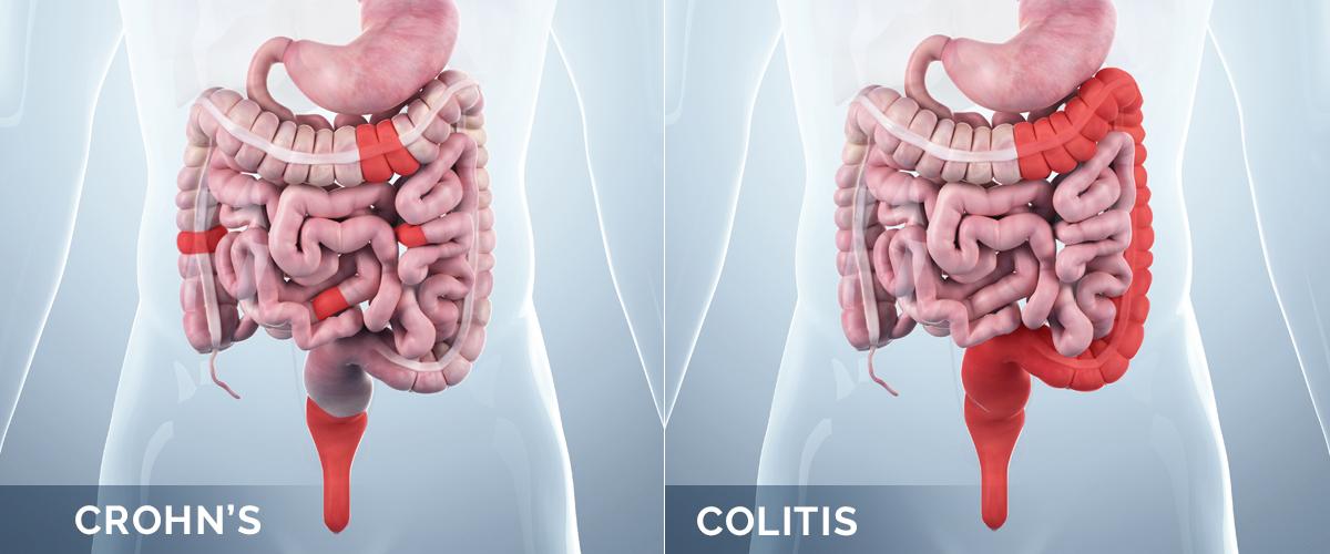 crohn's disease guidelines