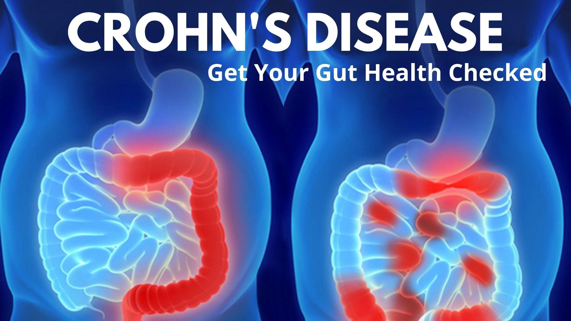 Crohn's Food Diary